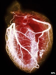 The report reviewed cardiology services across Scotland