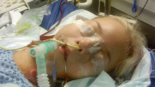Kirstie was hooked up to an ECMO machine which imitates the job done by the lungs