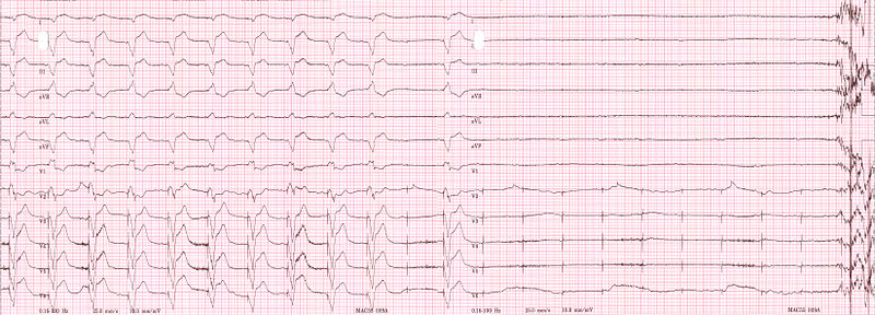ECG rhythm strip of a threshold determination in a patient with a temporary (epicardial) ventricular pacemaker. The epicardial pacemaker leads were placed after the patient collapsed during aortic valve surgery. In the first half of the tracing, pacemaker stimuli at 60 beats per minute result in a wide QRS complex with a right bundle branch block pattern. Progressively weaker pacing stimuli are administered, which results in asystole in the second half of the tracing. At the end of the tracing, distortion results from muscle contractions due to a (short) hypoxic seizure. Because decreased pacemaker stimuli do not result in a ventricular escape rhythm, the patient can be said to be pacemaker-dependent and needs a definitive pacemaker.