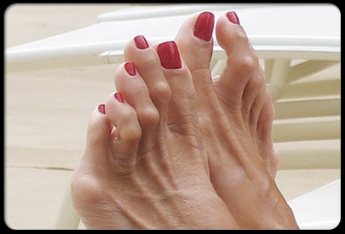 Picture of Hammertoes