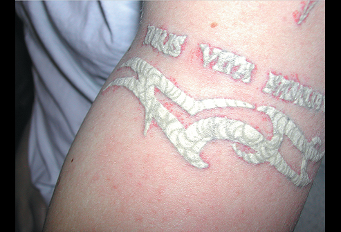 Tattoo with Q-Switched Laser Treatment