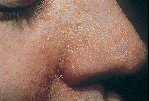 Tuberous Sclerosis (Adenoma Sebaceum)