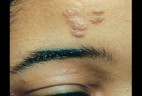 Tuberous Sclerosis (Fibrous Plaque)